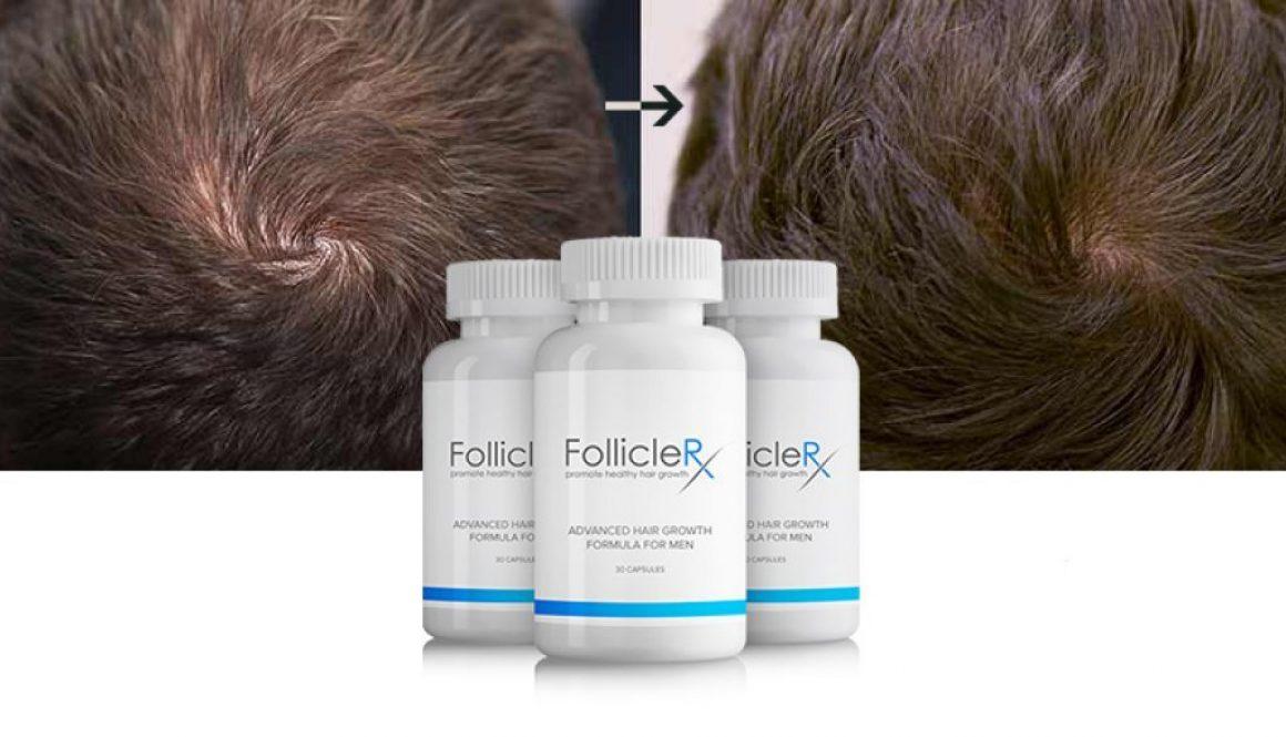 Follicle-RX Review: Wie sicher und effektiv ist dieses Produkt?